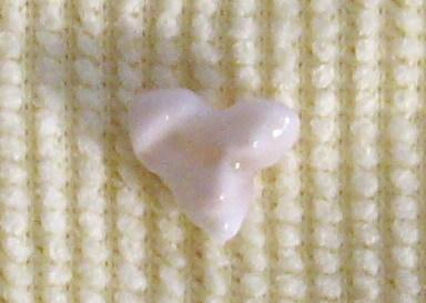 乳歯です^^